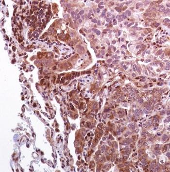 Immunohistochemistry (Formalin/PFA-fixed paraffin-embedded sections) - Anti-eIF4G1 (phospho S1108) antibody [SP351] (ab223502)
