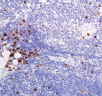 Immunohistochemistry (Formalin/PFA-fixed paraffin-embedded sections) - Anti-Lysozyme antibody [SP329] (ab223503)