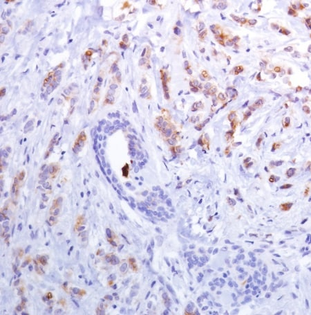Immunohistochemistry (Formalin/PFA-fixed paraffin-embedded sections) - Anti-Mammaglobin A antibody [SP319] - C-terminal (ab223504)
