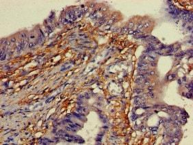 Immunohistochemistry (Formalin/PFA-fixed paraffin-embedded sections) - Anti-YIPF3 antibody (ab223505)