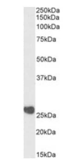 Western blot - Anti-Casein Kinase 2 beta antibody (ab223507)