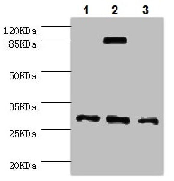 Western blot - Anti-NNMT antibody (ab223513)