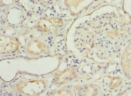 Immunohistochemistry (Formalin/PFA-fixed paraffin-embedded sections) - Anti-NNMT antibody (ab223513)