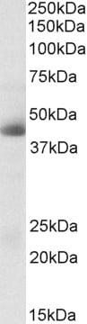 Western blot - Anti-Carbonic Anhydrase 12/CA12 antibody (ab223514)