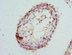 Immunohistochemistry (Formalin/PFA-fixed paraffin-embedded sections) - Anti-GPD2 antibody (ab223517)