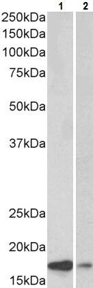 Western blot - Anti-Alpha-synuclein antibody (ab223518)