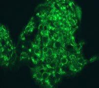 Immunocytochemistry/ Immunofluorescence - Anti-ATG9A antibody [EPR2450(2)] - BSA and Azide free (ab223528)