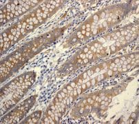 Immunohistochemistry (Formalin/PFA-fixed paraffin-embedded sections) - Anti-ATG9A antibody [EPR2450(2)] - BSA and Azide free (ab223528)