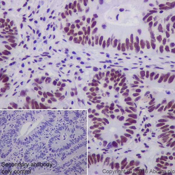 Immunohistochemistry (Formalin/PFA-fixed paraffin-embedded sections) - Anti-DBC-1 antibody [EPR19747] - BSA and Azide free (ab223530)