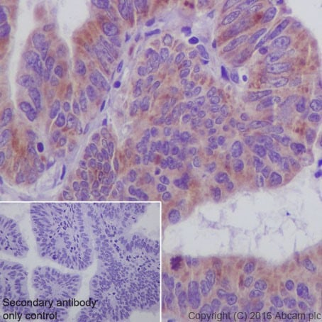 Immunohistochemistry (Formalin/PFA-fixed paraffin-embedded sections) - Anti-SIRT3 antibody [EPR19755] - BSA and Azide free (ab223531)