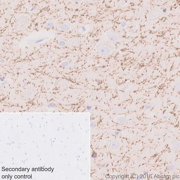 Immunohistochemistry (Formalin/PFA-fixed paraffin-embedded sections) - Anti-SIRT2 antibody [EPR20411-105] - BSA and Azide free (ab223534)