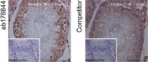 Immunohistochemistry (Formalin/PFA-fixed paraffin-embedded sections) - Anti-Bcl-XL antibody [EPR16642] - BSA and Azide free (ab223547)