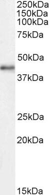 Western blot - Anti-Cdk9 antibody - C-terminal (ab223576)