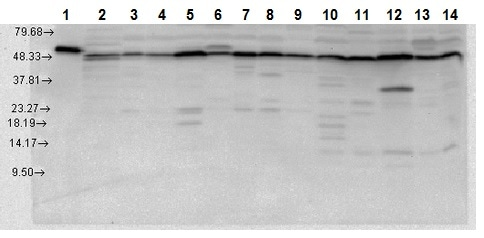 Western blot - Anti-P4HB antibody - C-terminal (ab223612)