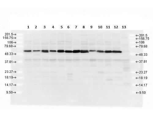 Western blot - Anti-Calreticulin antibody (ab223614)