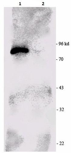 Immunoprecipitation - Anti-RSK1 p90 antibody (ab223616)
