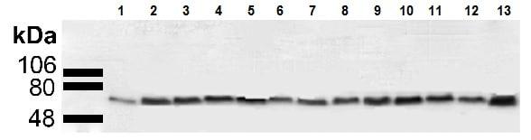 Western blot - Anti-AKT2 antibody (ab223617)