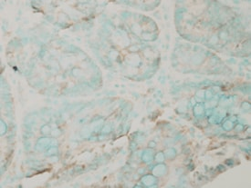 Immunohistochemistry (Formalin/PFA-fixed paraffin-embedded sections) - Anti-PUMA antibody - N-terminal (ab223618)