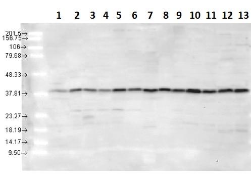 Western blot - Anti-p38 antibody (ab223619)