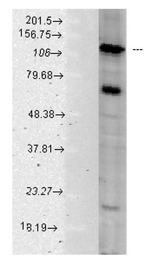 Western blot - Anti-Hsp105/HSP110 antibody (ab223620)