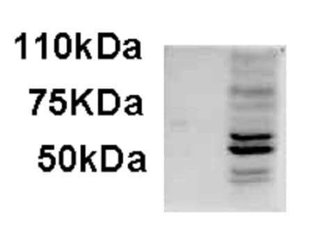 Western blot - Anti-AIM2 antibody - C-terminal (ab223622)