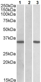 Western blot - Anti-CRISP2 antibody (ab223641)