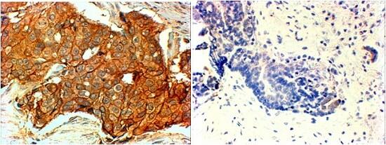 Immunohistochemistry (Formalin/PFA-fixed paraffin-embedded sections) - Anti-ErbB 2 antibody (ab223645)