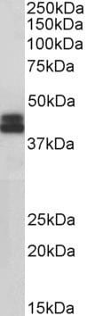 Western blot - Anti-HLAB antibody (ab223657)