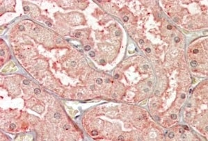 Immunohistochemistry (Formalin/PFA-fixed paraffin-embedded sections) - Anti-SFRP1 antibody - C-terminal (ab223678)