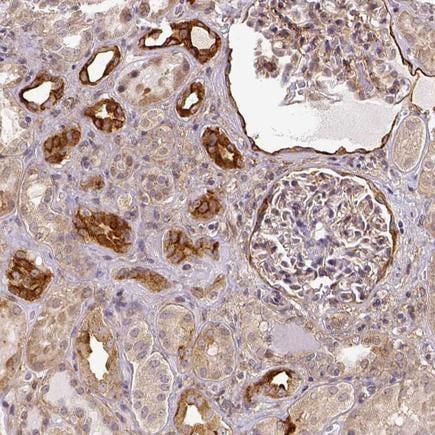 Immunohistochemistry (Formalin/PFA-fixed paraffin-embedded sections) - Anti-Dicer antibody (ab223686)