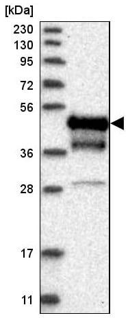 Western blot - Anti-Coxsackie Adenovirus Receptor/hCAR antibody (ab223689)