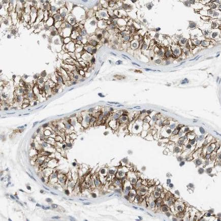 Immunohistochemistry (Formalin/PFA-fixed paraffin-embedded sections) - Anti-Wnt7a antibody (ab223690)