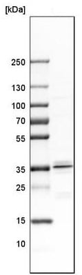 Western blot - Anti-Msx2/Hox8 antibody (ab223692)