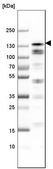Western blot - Anti-Anillin antibody (ab223695)