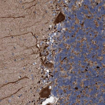 Immunohistochemistry (Formalin/PFA-fixed paraffin-embedded sections) - Anti-BBS9 antibody (ab223699)