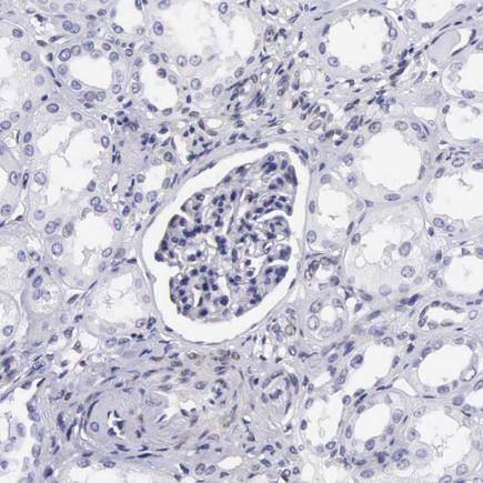 Immunohistochemistry (Formalin/PFA-fixed paraffin-embedded sections) - Anti-ETV6 / Tel antibody (ab223705)