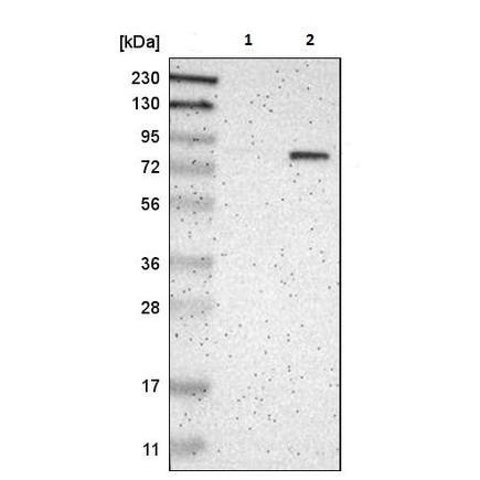 Western blot - Anti-P5CS antibody (ab223713)