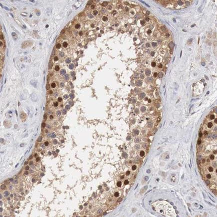 Immunohistochemistry (Formalin/PFA-fixed paraffin-embedded sections) - Anti-Cyclin B3 antibody (ab223715)