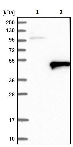 Western blot - Anti-ACTL7B antibody (ab223716)