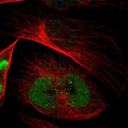 Immunocytochemistry/ Immunofluorescence - Anti-EMP2 antibody (ab223718)