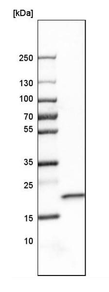 Western blot - Anti-SELS antibody (ab223721)