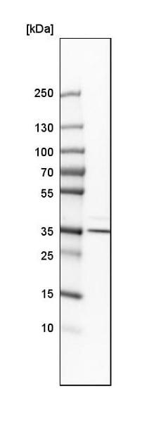 Western blot - Anti-BVR antibody (ab223723)