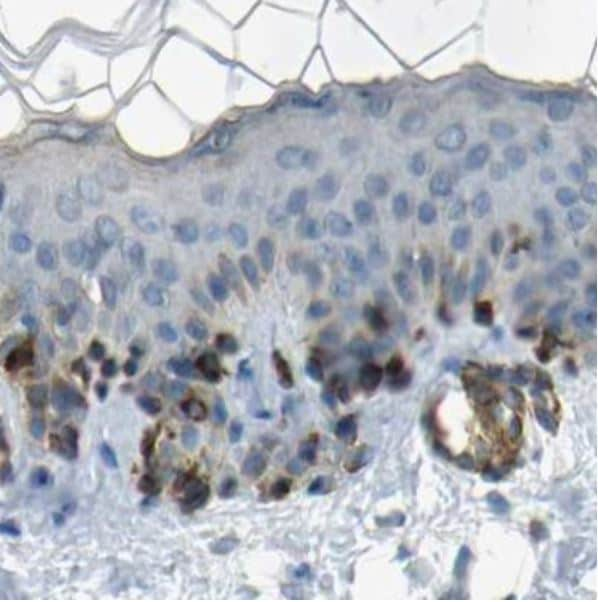 Immunohistochemistry (Formalin/PFA-fixed paraffin-embedded sections) - Anti-TRP2/DCT antibody (ab223736)