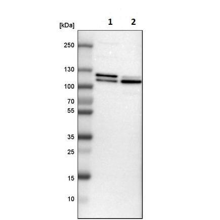Western blot - Anti-DNA Ligase III/LIG3 antibody (ab223739)