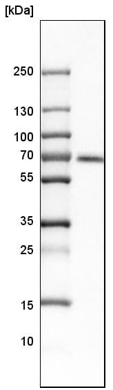 Western blot - Anti-CAMKK2 antibody (ab223740)
