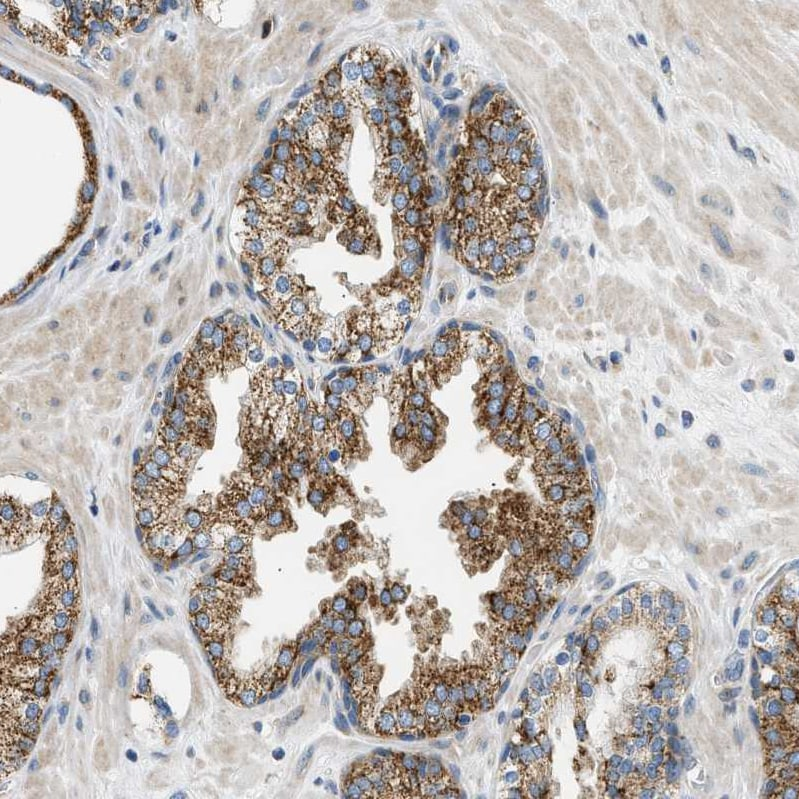 Immunohistochemistry (Formalin/PFA-fixed paraffin-embedded sections) - Anti-CAMKK2 antibody (ab223740)