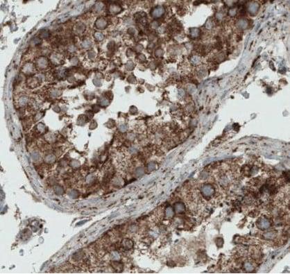 Immunohistochemistry (Formalin/PFA-fixed paraffin-embedded sections) - Anti-MIRO1 antibody [CL1095] (ab223750)