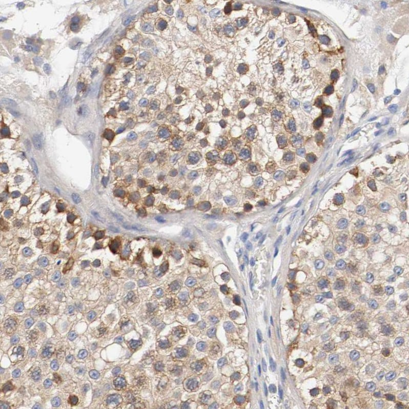 Immunohistochemistry (Formalin/PFA-fixed paraffin-embedded sections) - Anti-HGS antibody (ab223753)