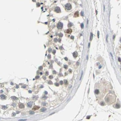 Immunohistochemistry (Formalin/PFA-fixed paraffin-embedded sections) - Anti-Plakophilin 2/PKP2 antibody (ab223757)