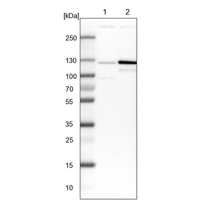 Western blot - Anti-p115-RhoGEF antibody (ab223759)